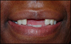 Missing central incisors
