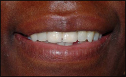 Restored central incisors