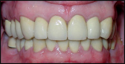 Same teeth after treatment.